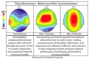 BrainWave Patterning